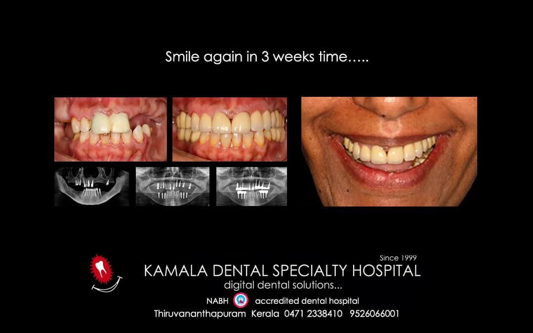 Smile again in 3 weeks time…..