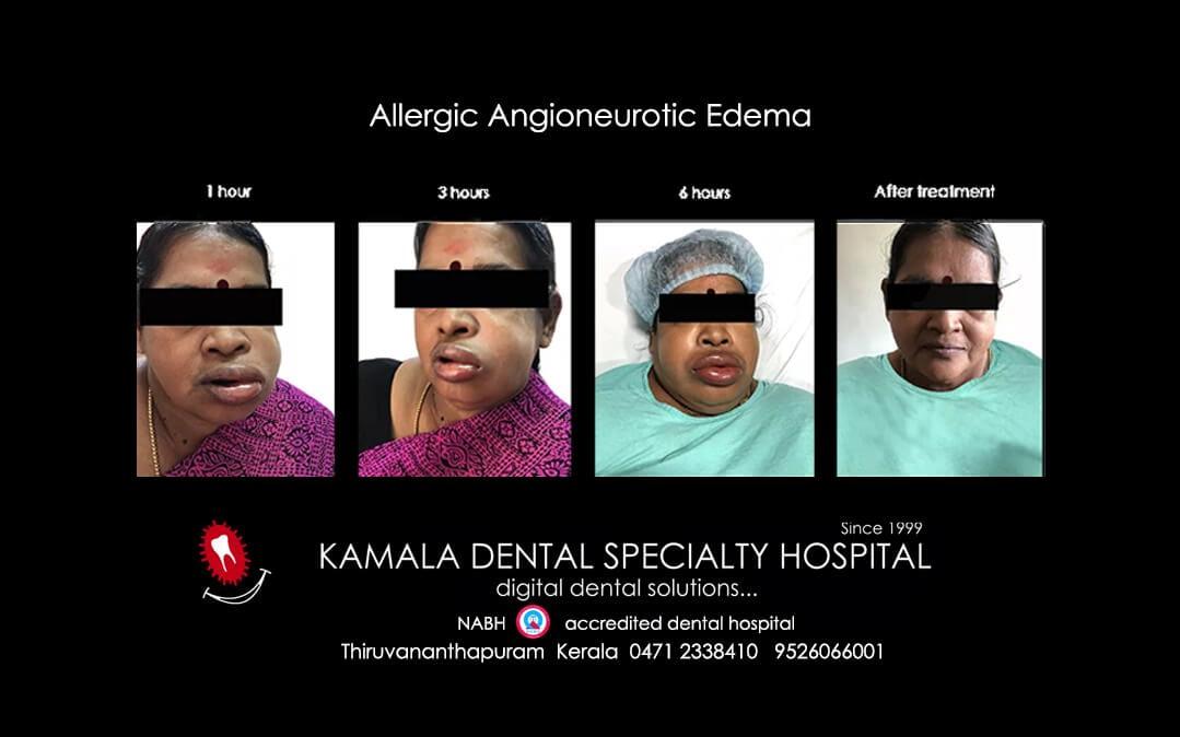 Allergic Angioneurotic Edema