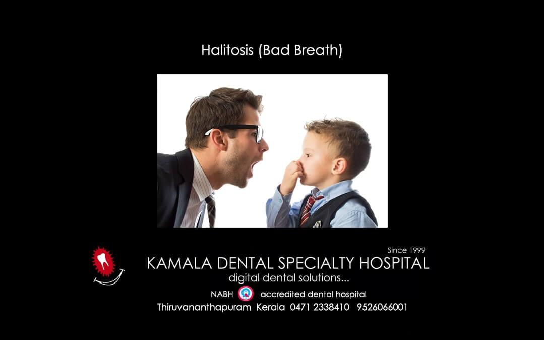 Halitosis(Bad Breath)