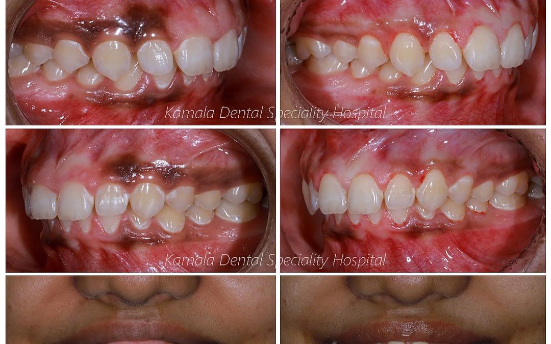 Gingival Depigmentation and Lip Lenthening