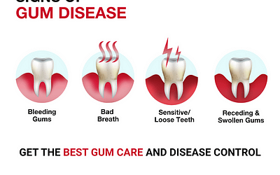 Early signs of gum diseases