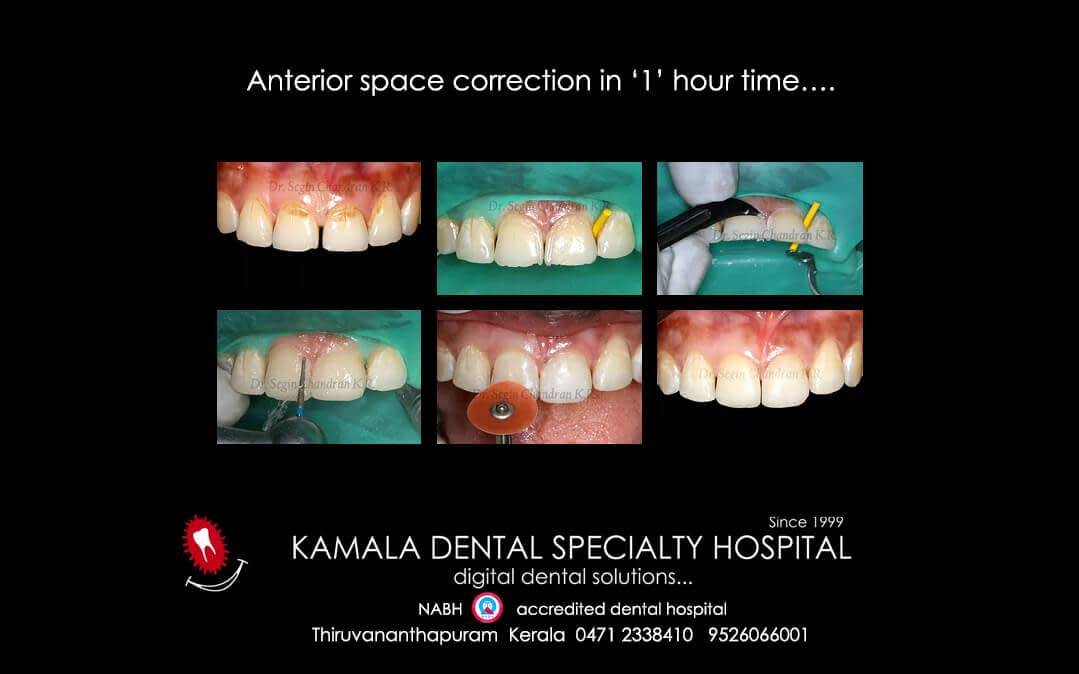 Anterior space correction in '1' hour time….