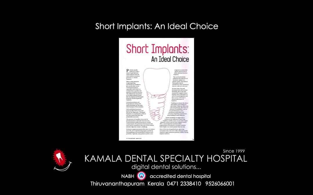 Short Implants: An Ideal Choice