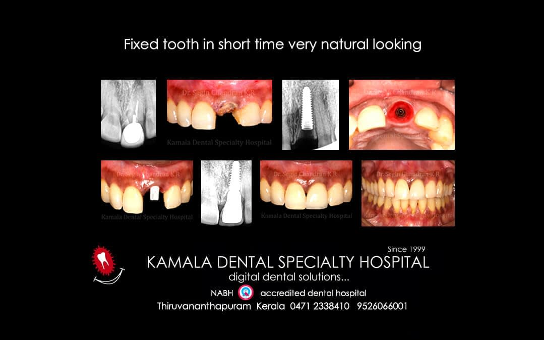 Fixed tooth in short time very natural looking.