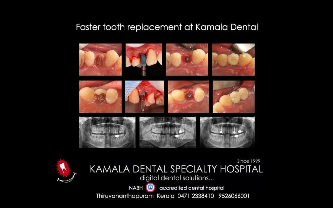 FASTER TOOTH REPLACEMENT AT KAMALA DENTAL