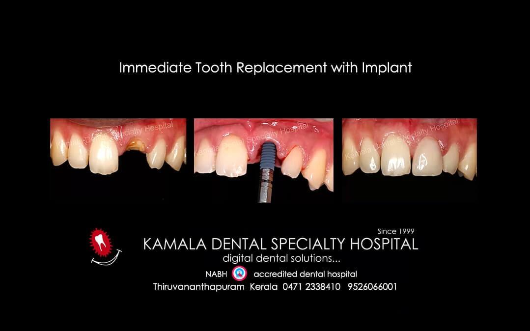 Dental Implants – Best way to get teeth replaced