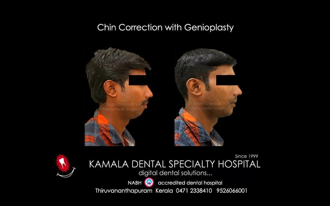Jaw Correction with Genioplasty