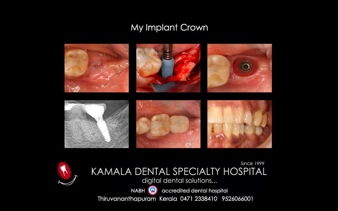 My Implant Crown