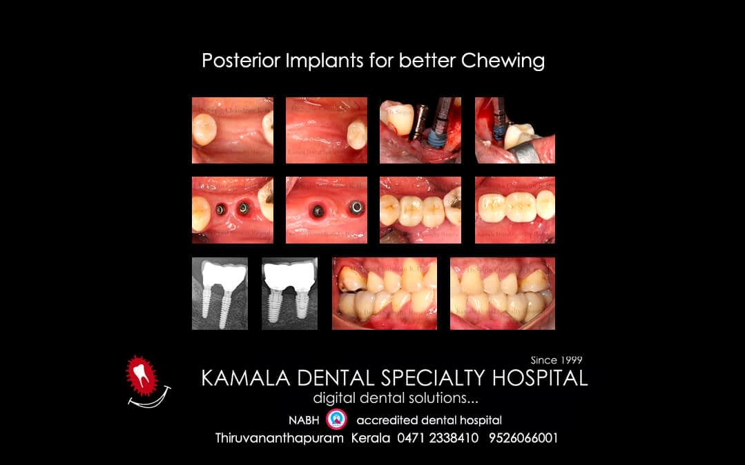 Posterior Implants for better Chewing.