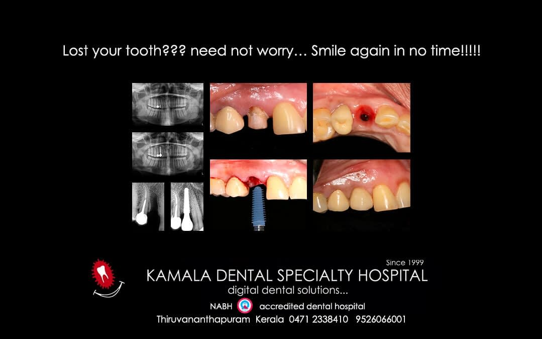 Lost your tooth??? Need not worry…Smile again in no time!!!!!