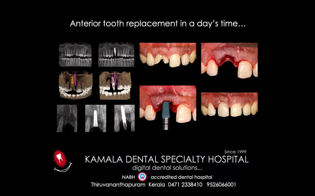 Anterior Tooth Replacement in a day's time…