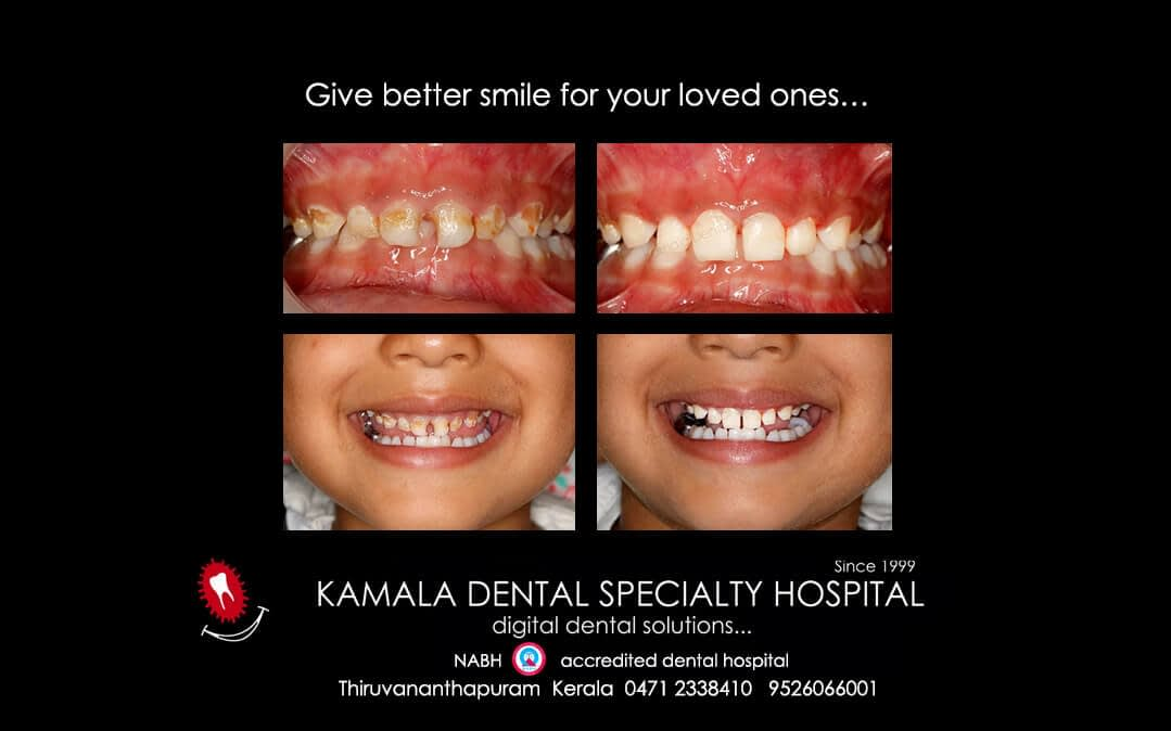 Give better smile for your loved ones…
