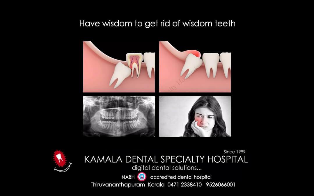 Have Wisdom to get rid of Wisdom Teeth