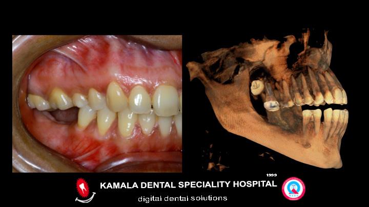 Dental Implants- Keyhole Surgery