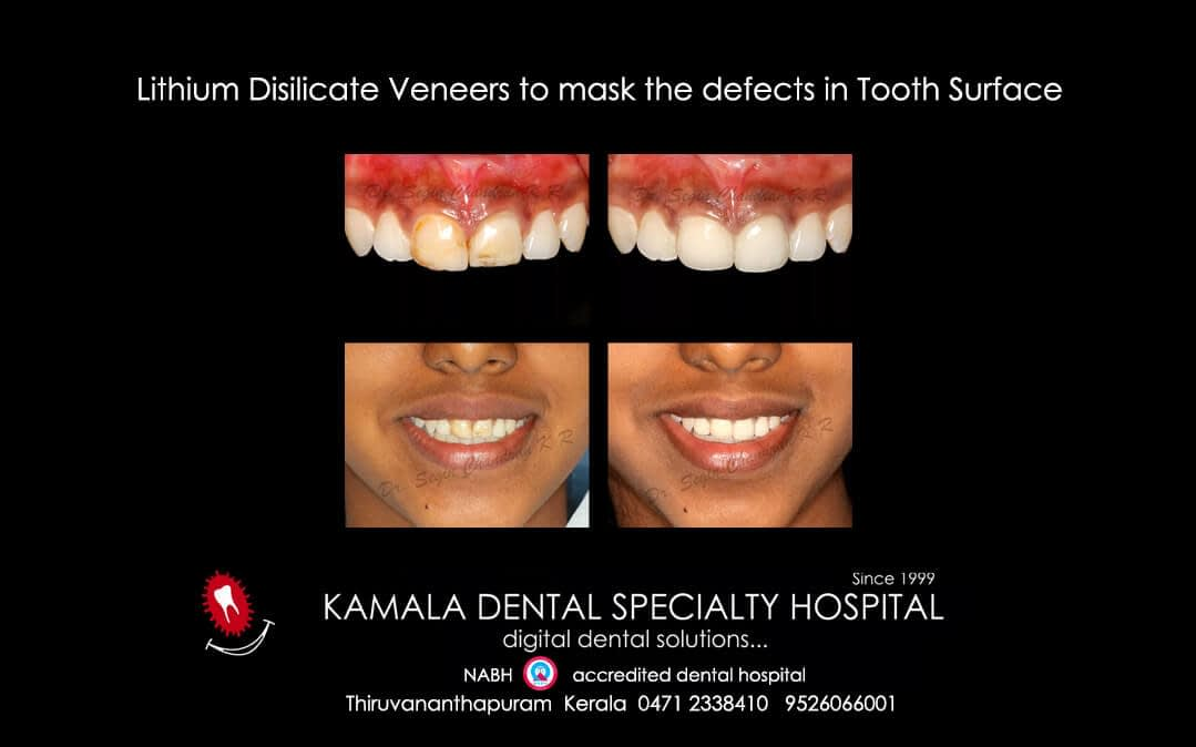 Lithium Disilicate Veneers to mask the defects in tooth surface