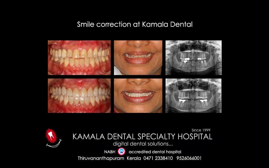 Smile Correction at Kamala Dental Thiruvananthapuram Kerala India