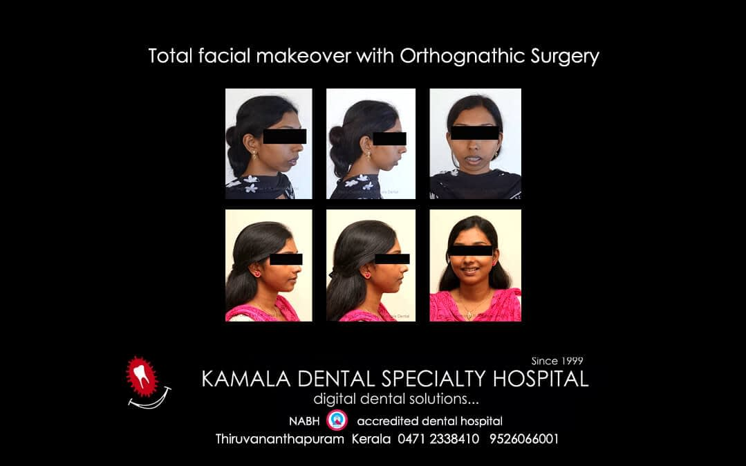 Total facial makeover with orthognathic surgery