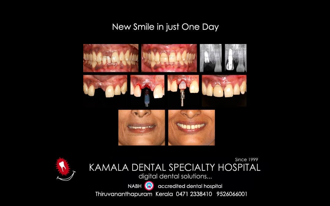 New smile in one day!…..
