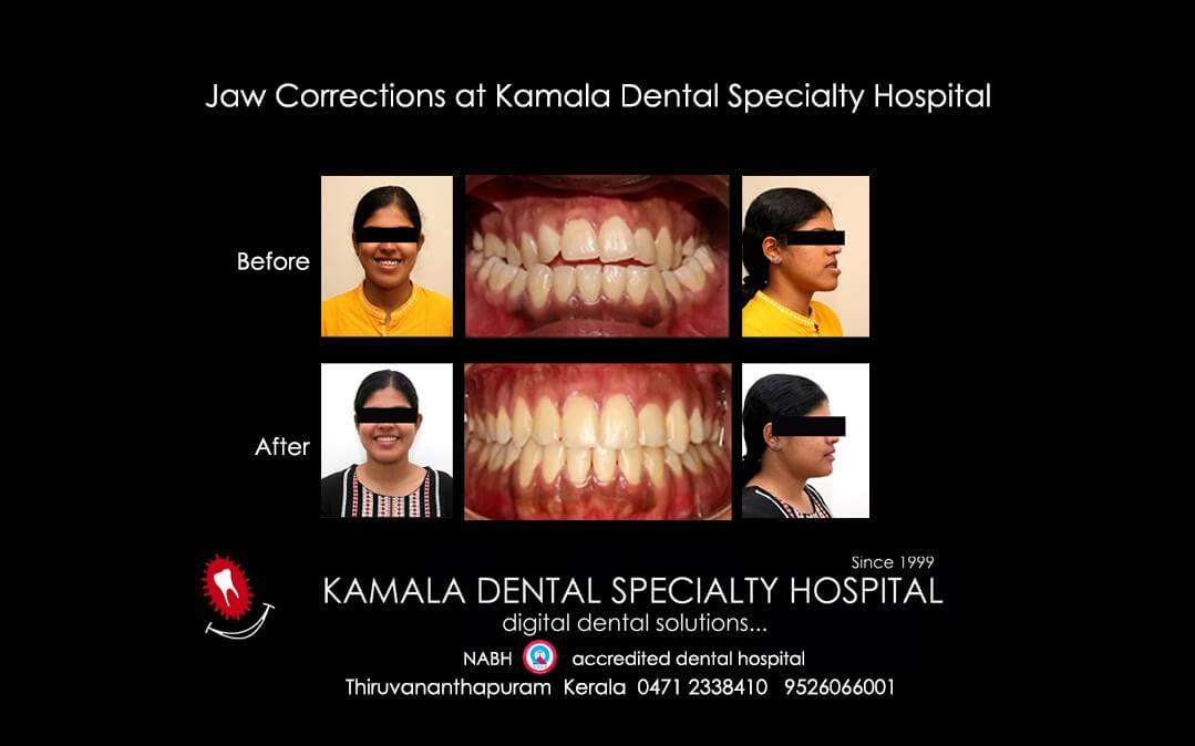 Jaw Corrections at Kamala Dental Specialty Hospital