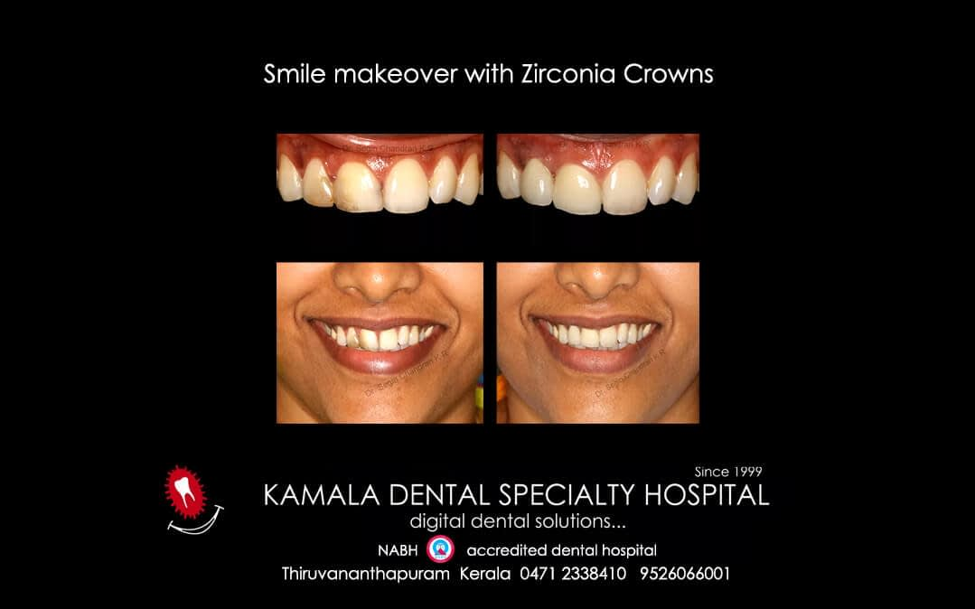 Smile Makeover with Zirconia crowns