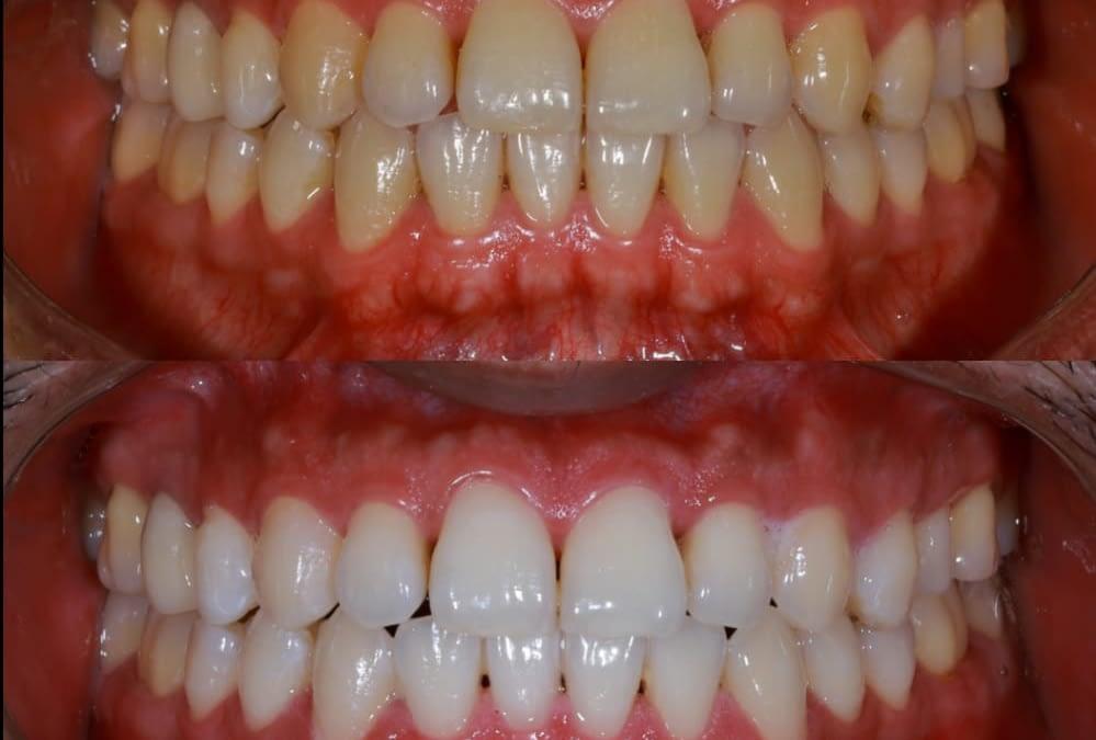 'Smile Brighter' at Kamala Dental Specialty Hospital