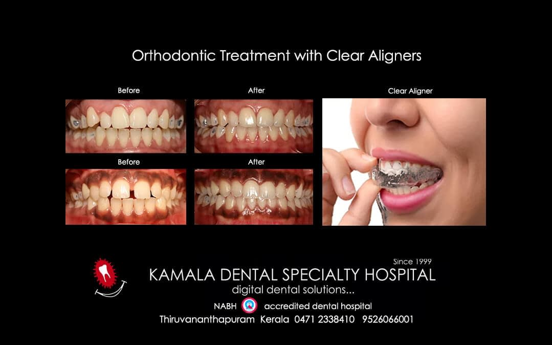 Orthodontic Treatment with Clear Aligners