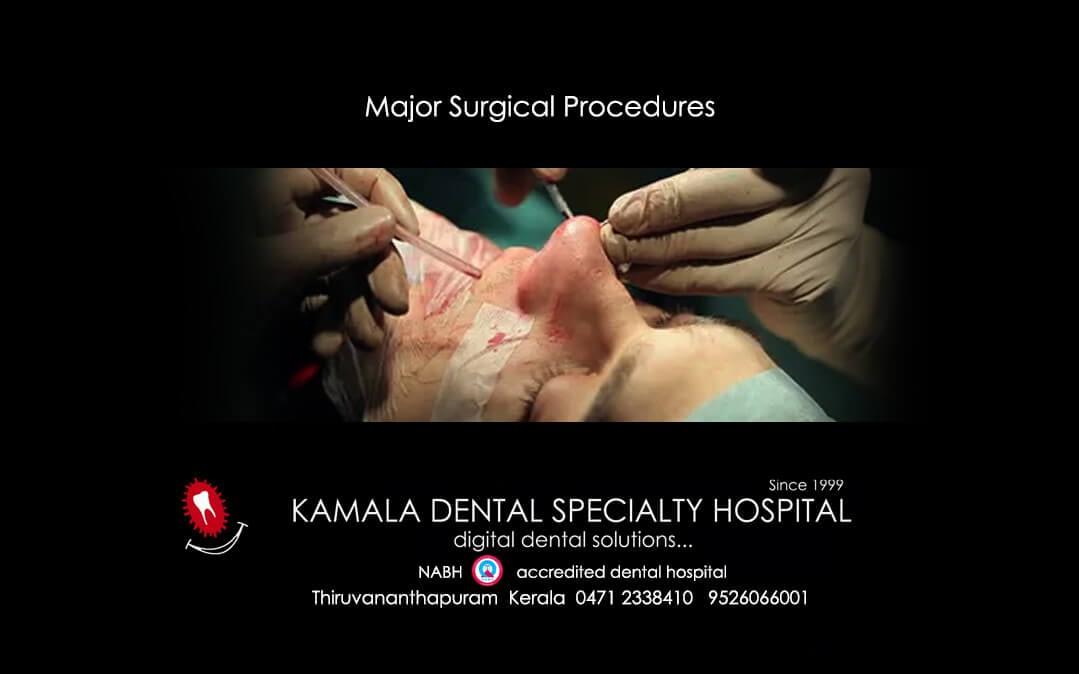 Major Surgical Procedures