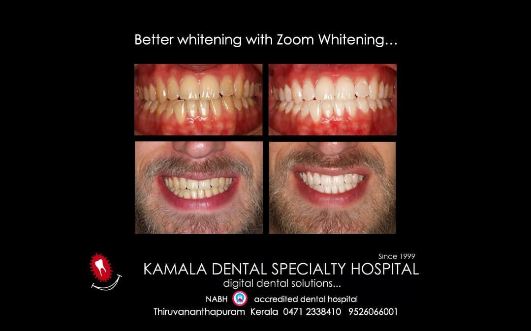 Better whitening with ZOOM Whitening…