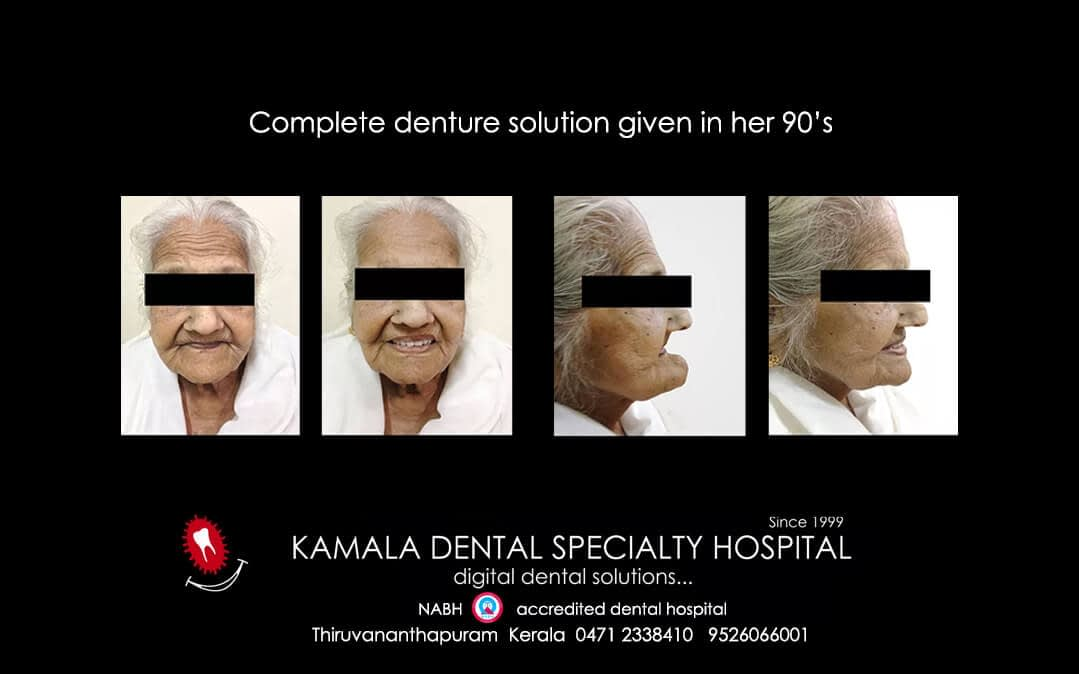 Complete denture solution given in her 90's