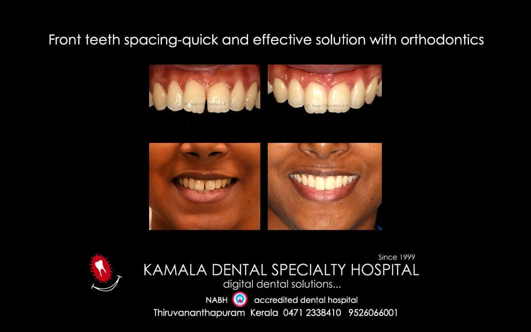 Front teeth spacing-Quick and effective solution with Orthodontics