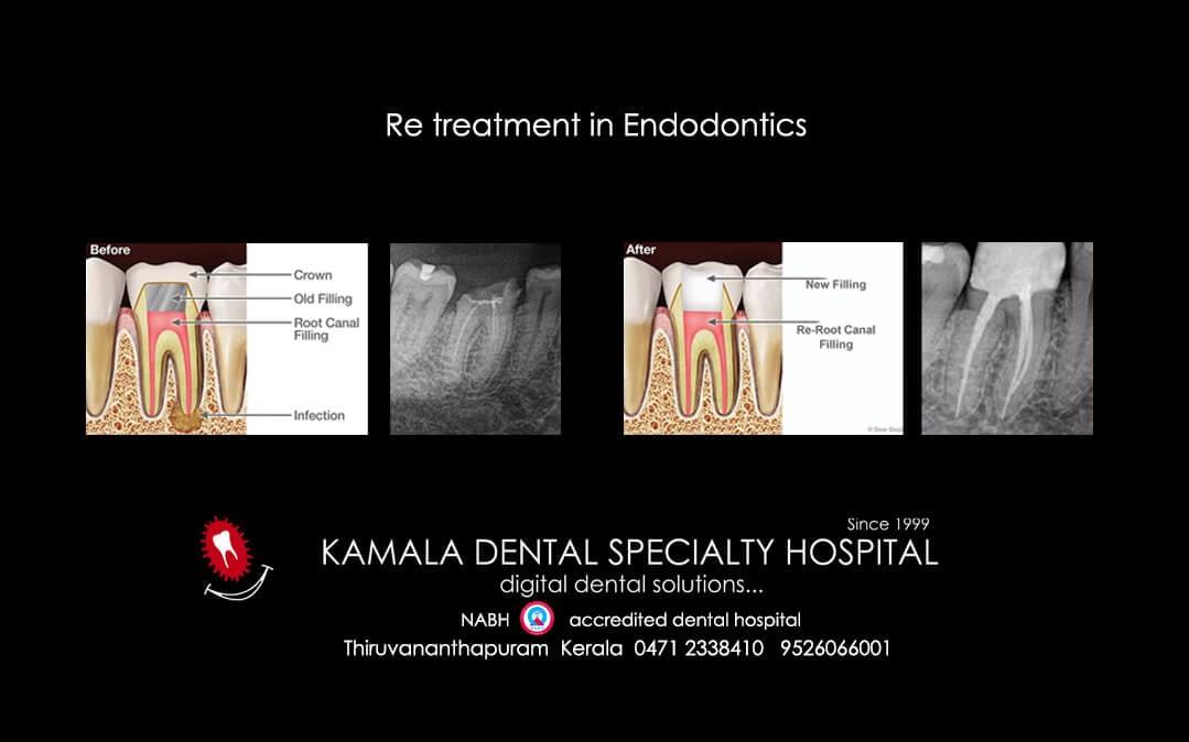 Re treatment in Endodontics – Best in Trivandrum
