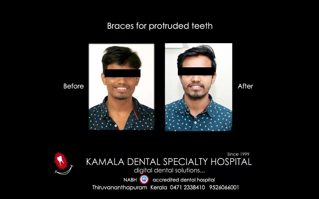 """""""Smile Correction"""" – """"Space Closure"""" in Trivandrum"""