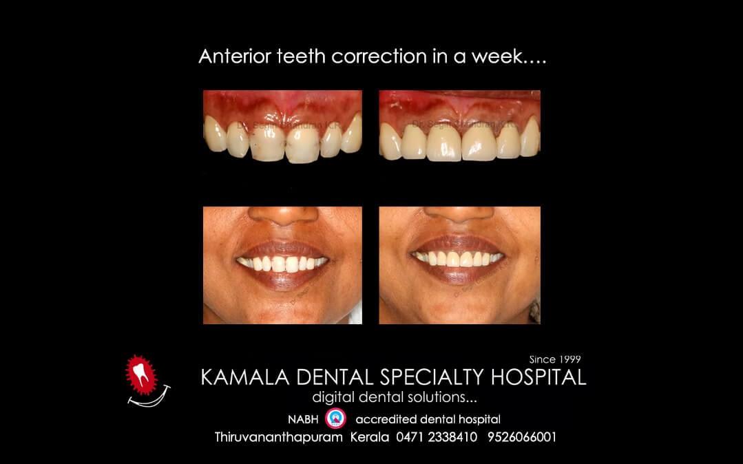Anterior teeth correction in a week….